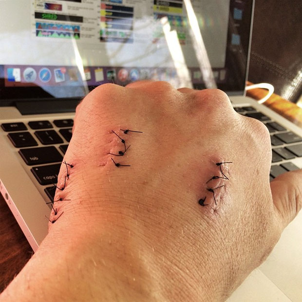 © facebook / Ted Ligety: Literally itching to take these stitches out. Nice to be almost metal free.