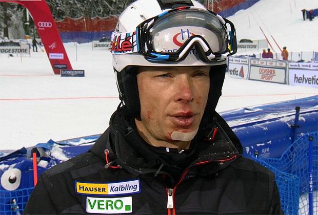 Torstange setzt ORF-Experte Thomas Sykora außer Gefecht