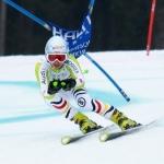 """Deutsche Ski Damen kämpfen mit dem """"Verletzungsteufel"""" – Saisonauftakt ohne Kathrin Hölzl"""
